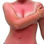 sunburn_xs2.png